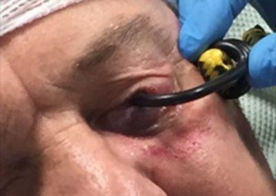 Người đàn ông bị mù vì móc dây chun